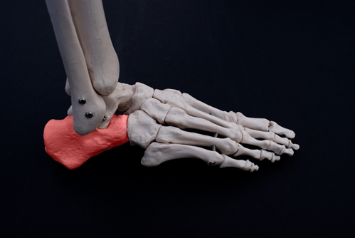 Heel bone spurs can become painful for some people.