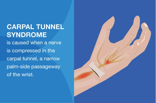 Graphic showing anatomy of the carpal tunnel along the palm side of the wrist.